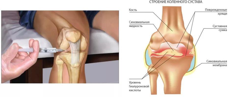 Который вызывает суставы в коленях, Unguent de durere în articulațiile degetelor